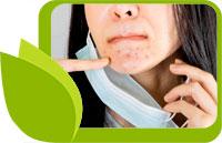 Маските за лице и акне от носенето на маска - как да ги елиминирате?
