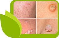 МОЖЕ ЛИ HPV (ЧОВЕШКИ ПАПИЛОМЕН ВИРУС) ДА БЪДЕ ИЗЛЕКУВАН С НАРОДНИ СРЕДСТВА