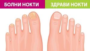 зараза от гъбички, гъбички по ноктите, гъбички, нокти