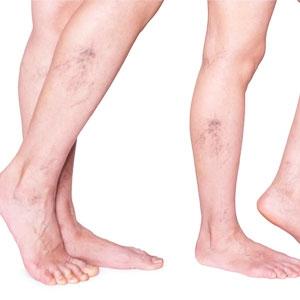 Лечение на уморените крака и варикозни вени