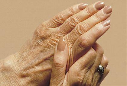Три чудодейни билки срещу ревматоиден артрит - За Жената
